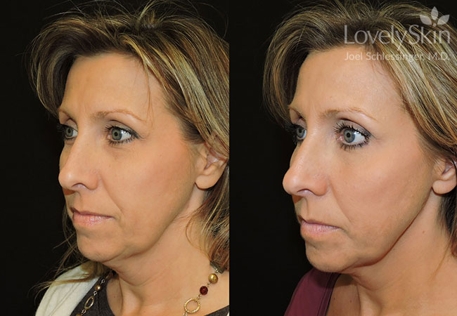 Before and after one Kybella treatment.