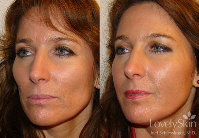Before and after 1cc Botox, 2 Voluma, 2 Juvederm, 3 Perlane, 2 Restylane