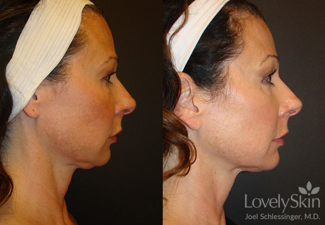 Before and after one full face Ultherapy treatment.