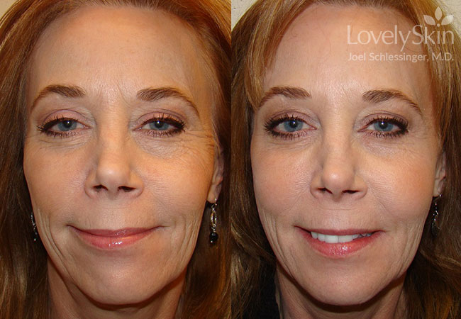Before and after Botox, Voluma, Juvederm, Restylane, Perlane