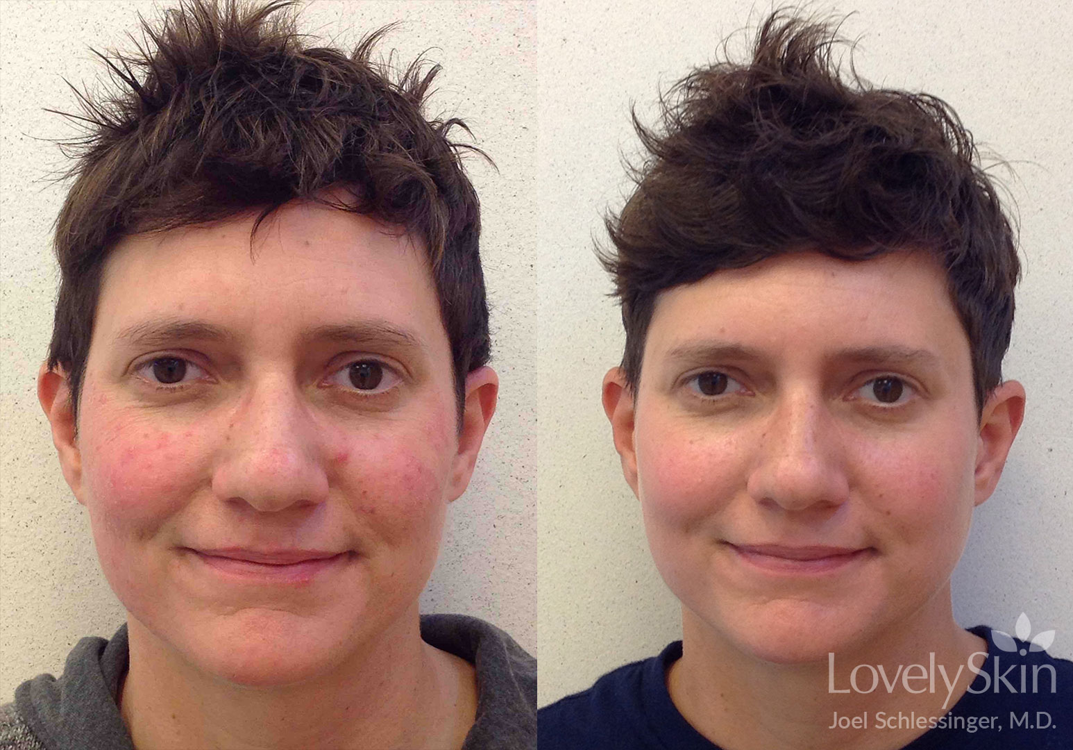 Rosacea Before Amp After Photos Skin Specialists P C