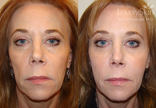 Before and after Botox, Voluma, Juvederm, Restylane and Perlane.