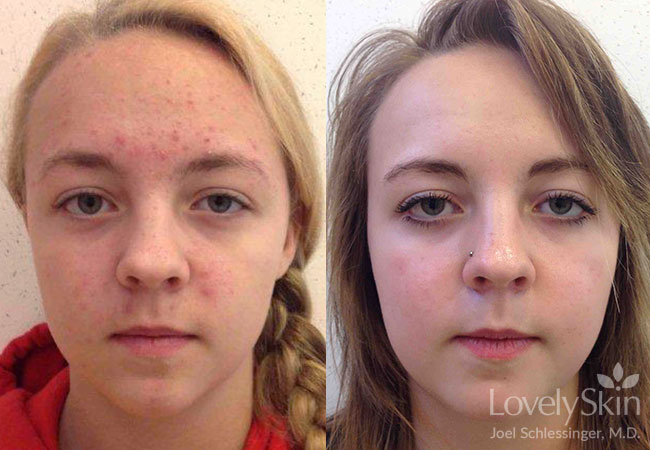 Acne Before Amp After Photos Skin Specialists P C