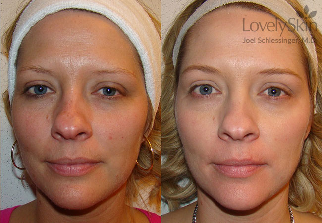 Ipl Treatment Before Amp After Photos Skin Specialists