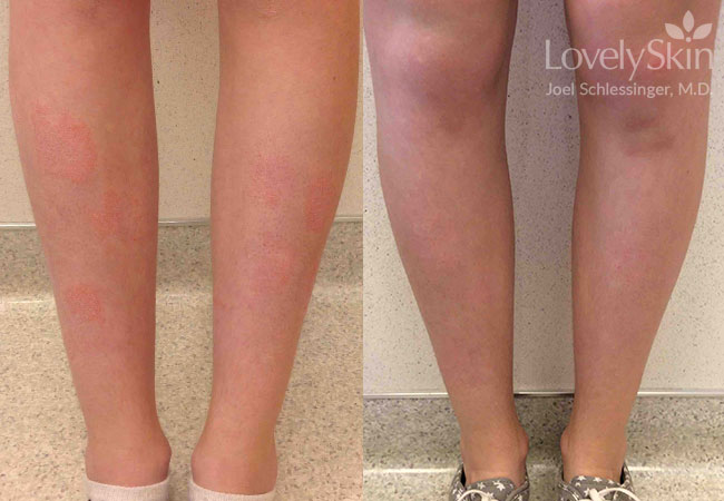 Psoriasis Before Amp After Photos Skin Specialists P C