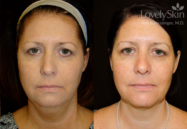 Before and after two Kybella treatments.