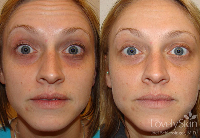 Before and after Restylane for dark eye circles
