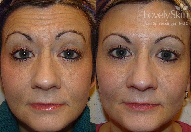 Before and after .75cc Botox, 2 syringes of Filler (Restylane & 1 Perlane).